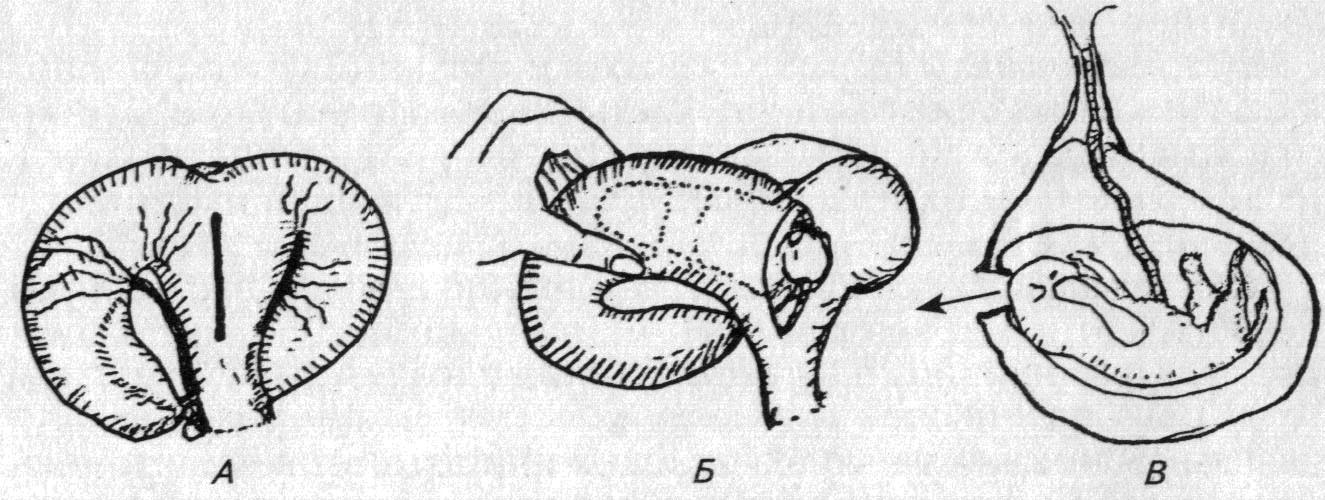 обидчика, кесарево сечение у кошки техника операции все популярные способы
